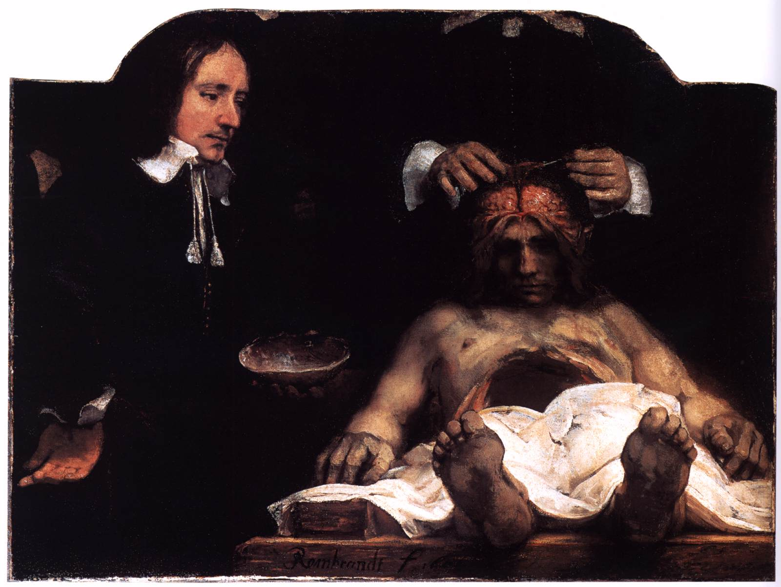 Rembrandt Anatomy Lesson Of Dr Nicolaes Tulp. Human\'s Scribbles ...
